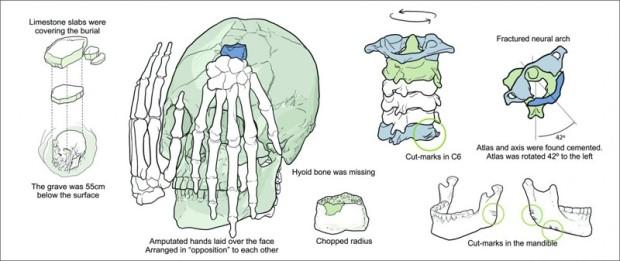 於巴西出土的美洲原住民斬首頭顱,圖解。(Drawing by Gil Tokyo)